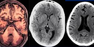 מחקר הדמיית מוח ראשון מסוגו על השפעות LSD