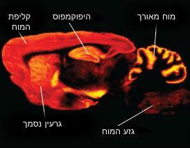 hippocampus (4)